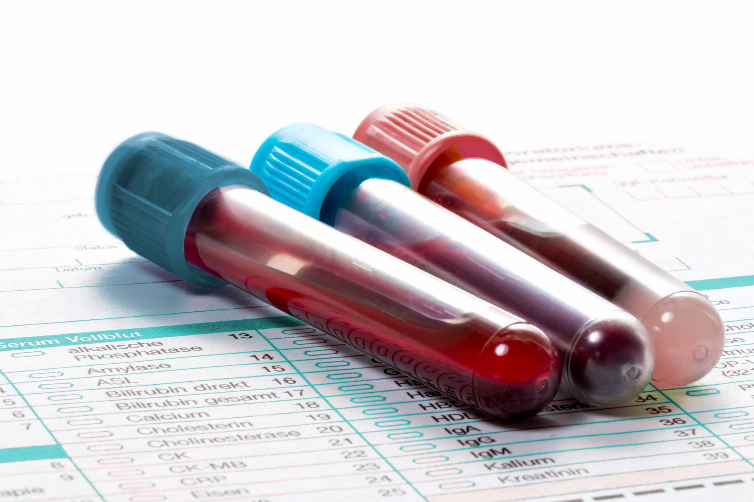 Blood samples in ampoules for hematological tests